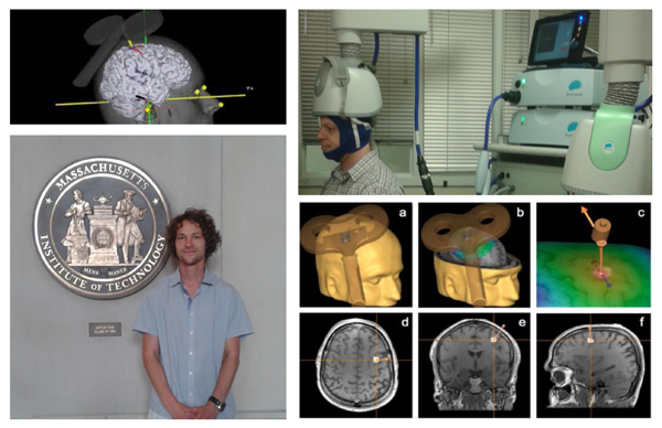 Exploring innovative neuroplasticity interventions via transcranial magnetic stimulation